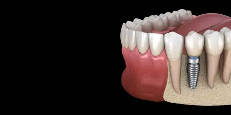 What is Dental Bone Grafting?